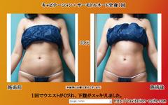 thermoTornadozenshin-cabi-1kai_30sai_2012_11_181.jpg