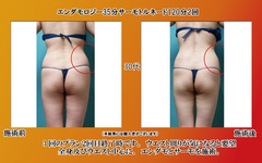 endamo35_torunado_120_3nd_30age_20140208.jpg