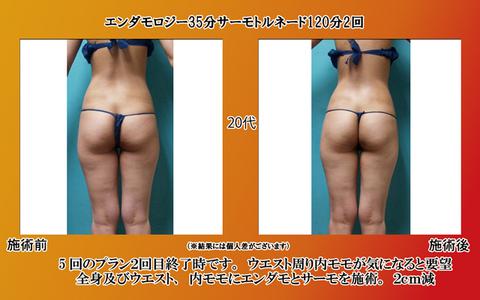 endamo35_torunado_120_2nd_25age_20140208.jpg